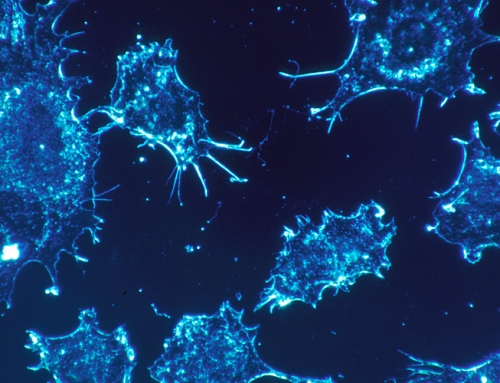 Cancer: radical new approach to be proposed